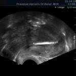 Ultraschall_27